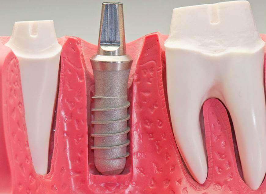 Сложное протезирование зубов