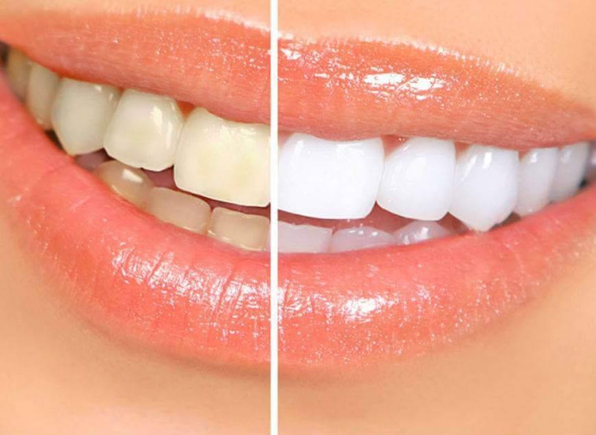Отбеливание зубов лазером