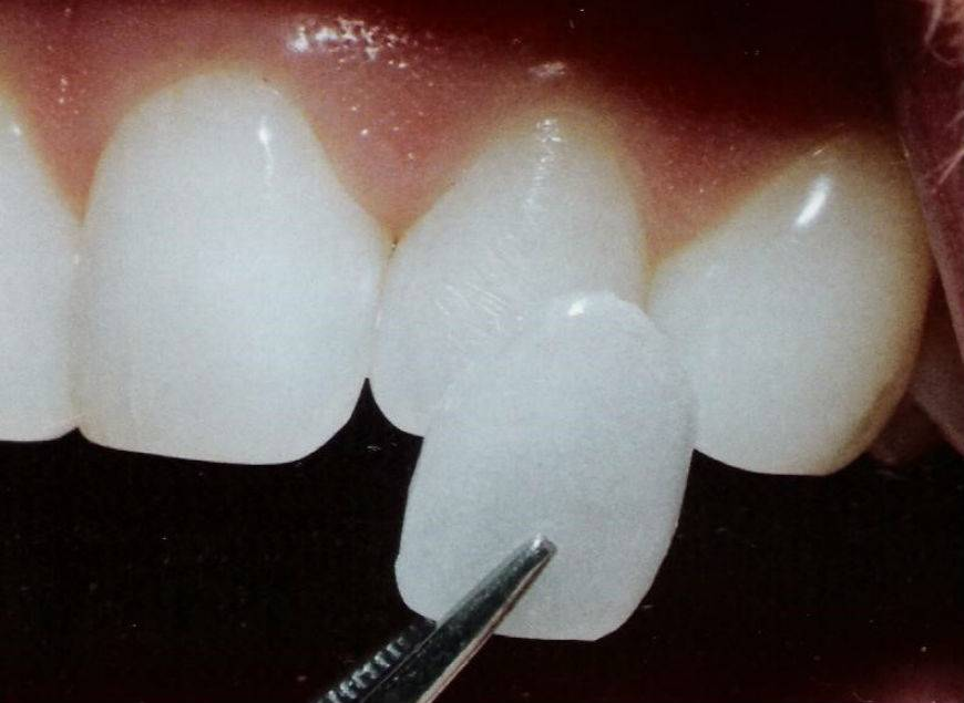 Эстетическая стоматология Отрадное
