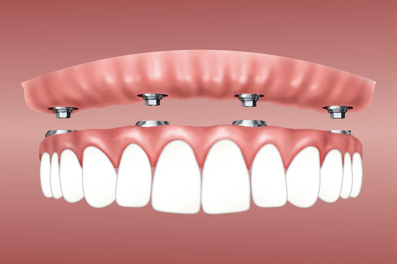 Можно ли восстановить утраченные зубы за 1 день?
