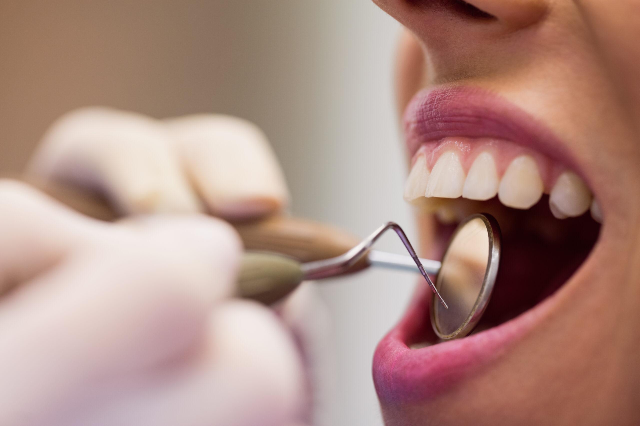 Удаление нерва зуба: способы, показания и противопоказания