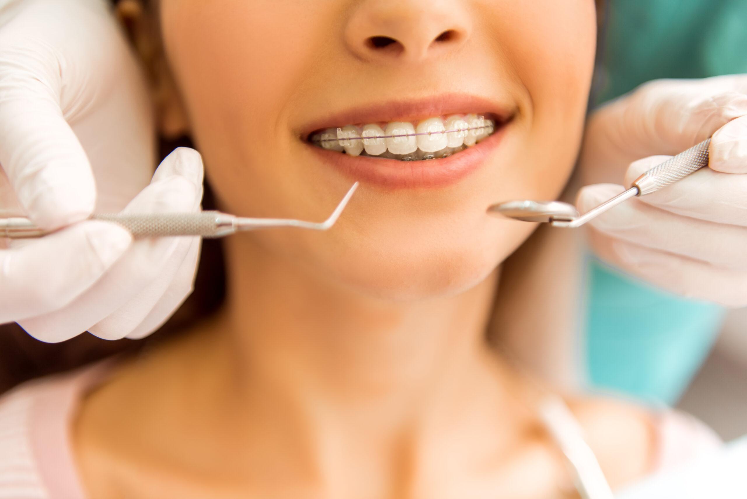 Коронки на зубы: виды и достоинства