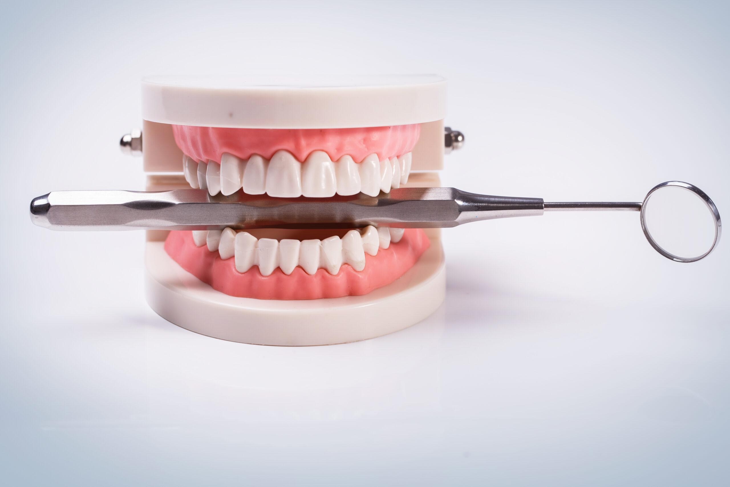 Адентия — полное и частичное отсутствие зубов