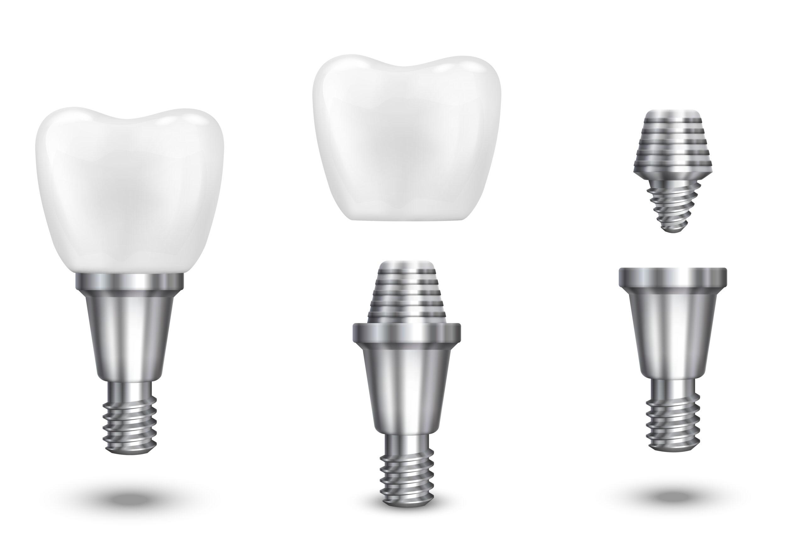 Стоматолог имплантолог: что делает и что лечит