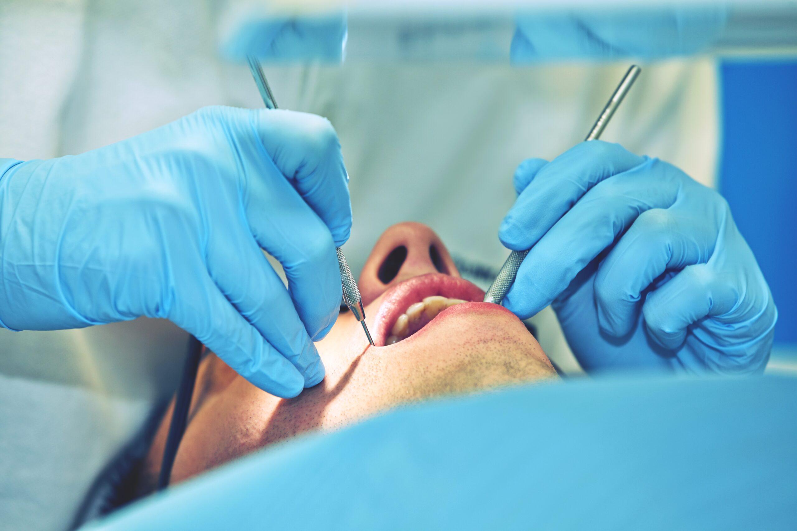 Стоматолог хирург: что делает и что лечит