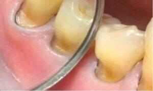 Что такое клиновидный дефект зубов: как вылечить?