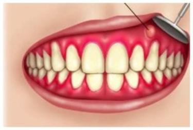 Абсцесс десны: причины, симптомы и лечение, Северо-Восточный Стоматологический Центр №1