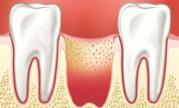 Альвеолит после удаления зуба - симптомы и лечение