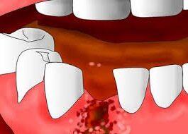 Альвеолит после удаления зуба — симптомы и лечение, Северо-Восточный Стоматологический Центр №1