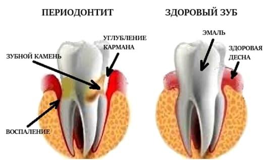 Периодонтит зуба: что это такое — симптомы и как его лечить, Северо-Восточный Стоматологический Центр №1